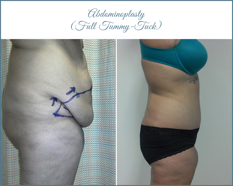 Flat Tummy Tuck Surgery