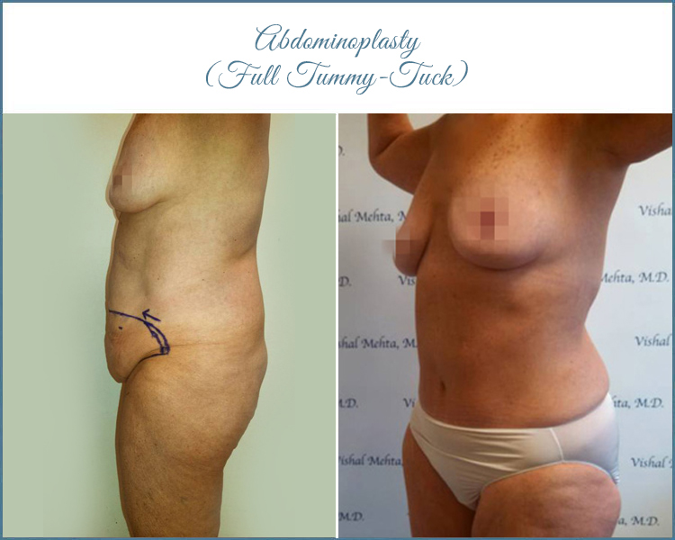 Full Tummy Tuck